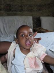 Joshua, medical support, special need child, Circle4life Kenya